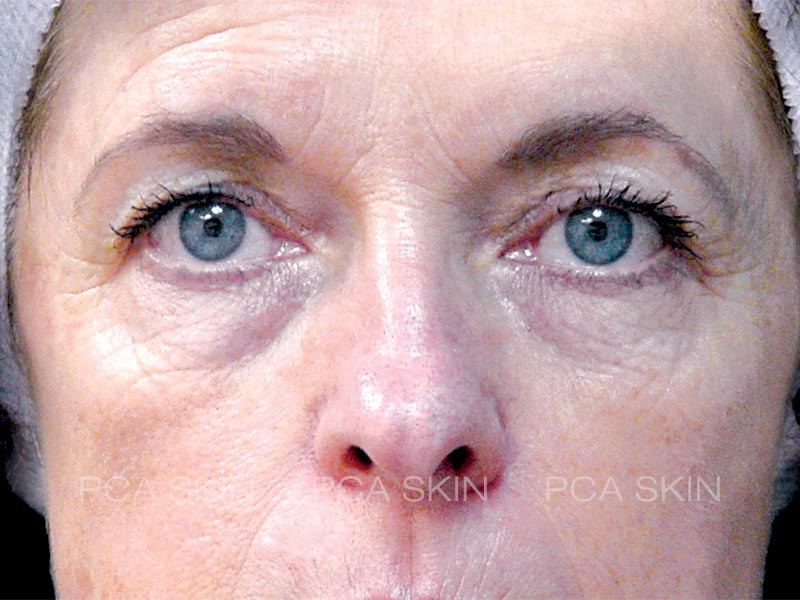 visible-aging-after-4-jpg