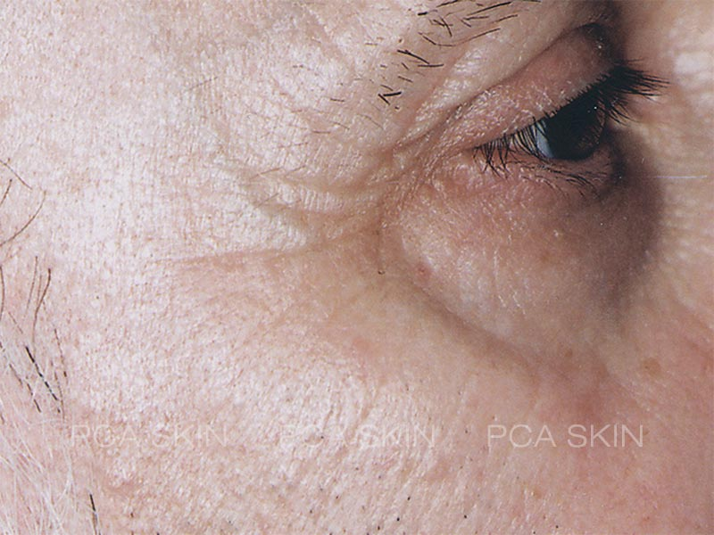 visible-aging-after-7-jpg